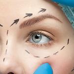 Blefaroplastia - Cirugia estetica