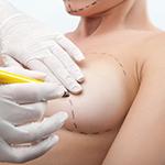 Aumento de busto, Aumento de mamas, Protesis de silicona - Cirugia estetica