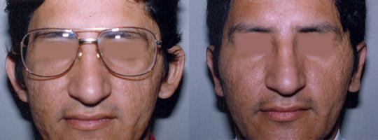Caso 1 - Antes y Después