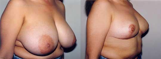 Reducción mamaria (15 días de evolución)