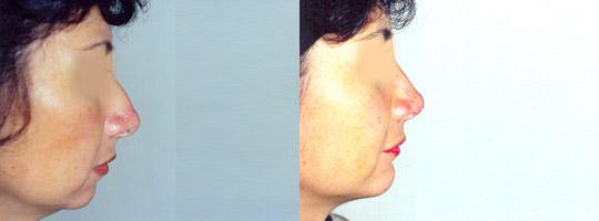 Rinomentoplastia Antes y Después