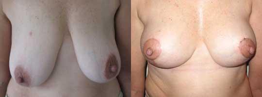 Levantamiento Mamario 15 días postoperatorio (Retiro de piel excedente, reposicion del pezón , sin retiro de tejido mamario)