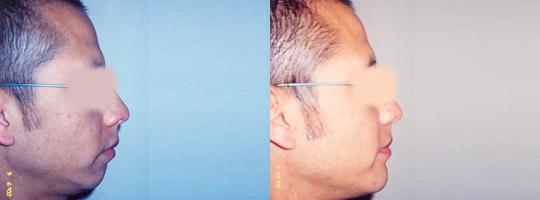 Mentoplastia Antes y Después