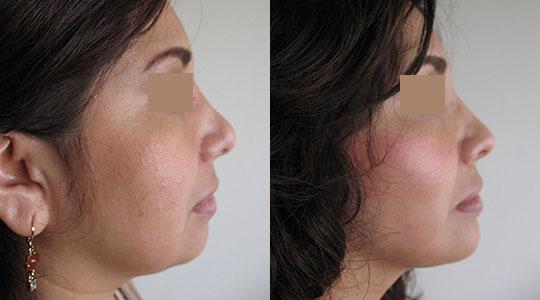 CASO 1 : Paciente con seis meses de evolucion de lifting, rinoplastia secundaria, mentoplastia, retiro de bola de bichat y afinamiento de rostro con liposuccion del tercio inferior de la cara y papada.