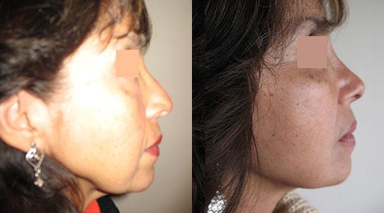 CASO 2 : Paciente con seis meses de evolucion de Lifting, retiro de bola de bichat por la misma via del lifting, Rinoplastia, y afinamiento de rostro con liposucción.