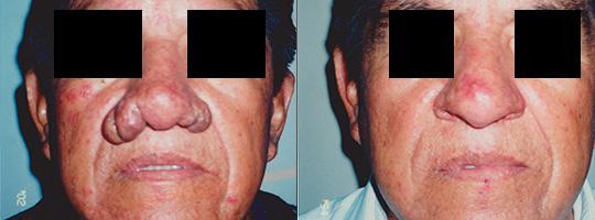 Rinoplastia en Lima - Doctor Venegas